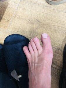 これは?外反母趾?または痛風?(T . T)